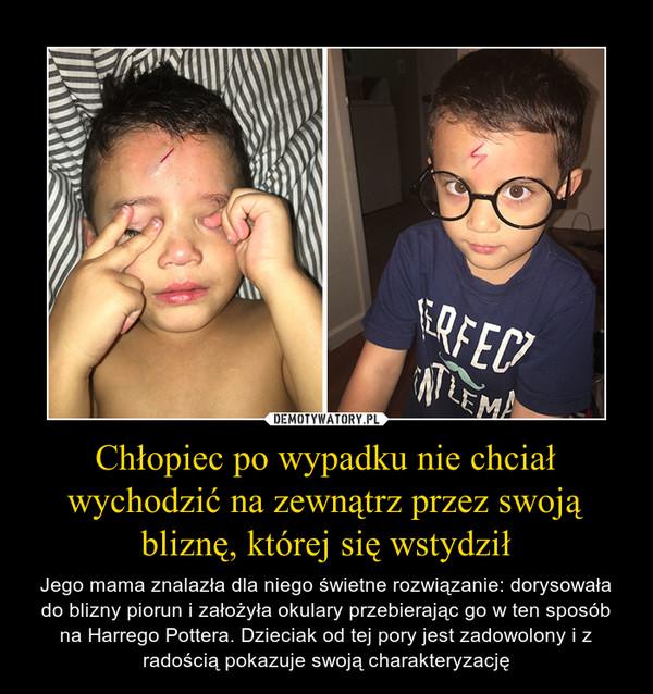Chłopiec po wypadku nie chciał wychodzić na zewnątrz przez swoją bliznę, której się wstydził – Jego mama znalazła dla niego świetne rozwiązanie: dorysowała do blizny piorun i założyła okulary przebierając go w ten sposób na Harrego Pottera. Dzieciak od tej pory jest zadowolony i z radością pokazuje swoją charakteryzację