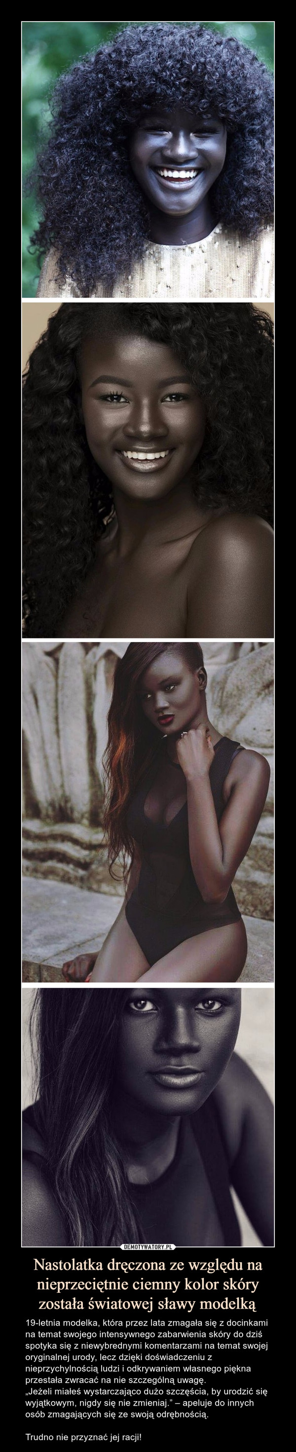 """Nastolatka dręczona ze względu na nieprzeciętnie ciemny kolor skóry została światowej sławy modelką – 19-letnia modelka, która przez lata zmagała się z docinkami na temat swojego intensywnego zabarwienia skóry do dziś spotyka się z niewybrednymi komentarzami na temat swojej oryginalnej urody, lecz dzięki doświadczeniu z nieprzychylnością ludzi i odkrywaniem własnego piękna przestała zwracać na nie szczególną uwagę.""""Jeżeli miałeś wystarczająco dużo szczęścia, by urodzić się wyjątkowym, nigdy się nie zmieniaj."""" – apeluje do innych osób zmagających się ze swoją odrębnością. Trudno nie przyznać jej racji!"""