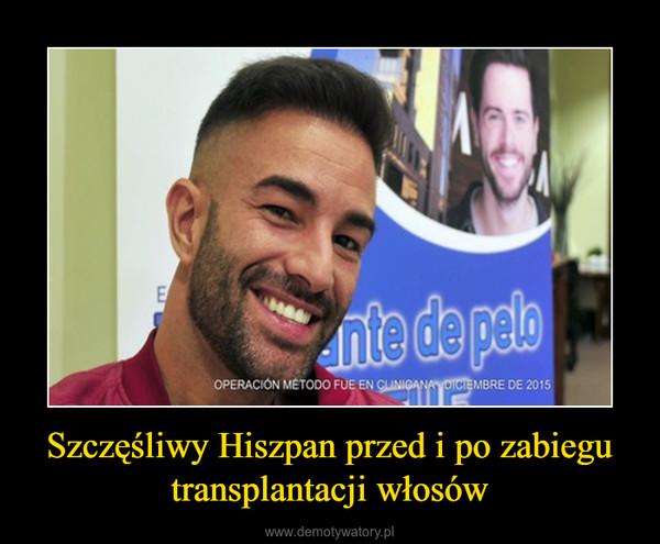 Szczęśliwy Hiszpan przed i po zabiegu transplantacji włosów –