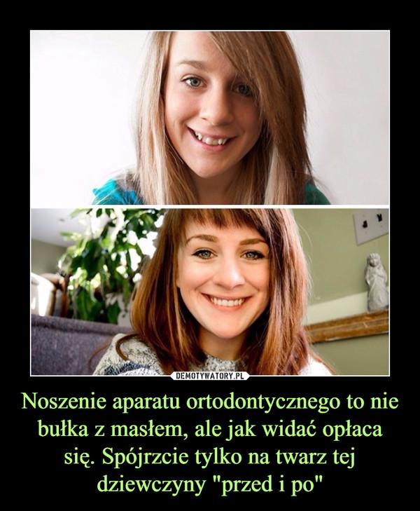 """Noszenie aparatu ortodontycznego to nie bułka z masłem, ale jak widać opłaca się. Spójrzcie tylko na twarz tej dziewczyny """"przed i po"""" –"""