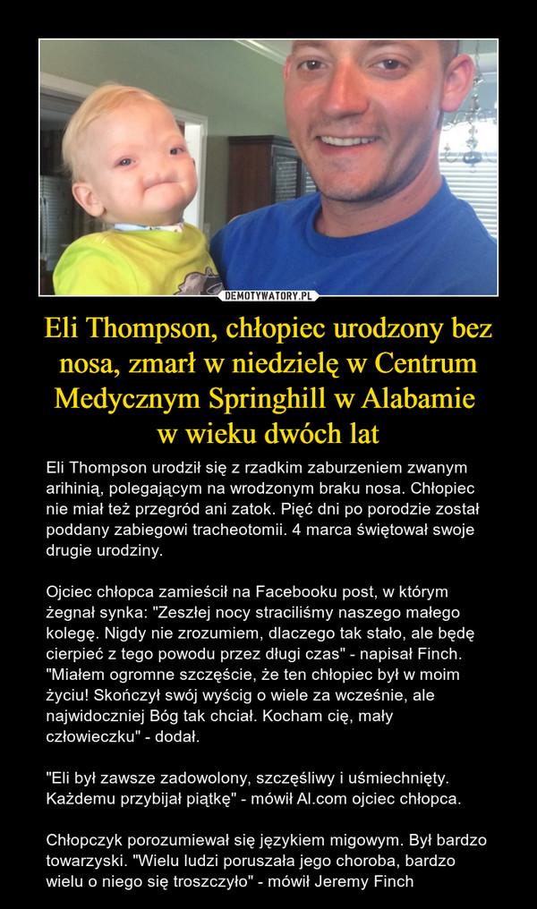 """Eli Thompson, chłopiec urodzony bez nosa, zmarł w niedzielę w Centrum Medycznym Springhill w Alabamie w wieku dwóch lat – Eli Thompson urodził się z rzadkim zaburzeniem zwanym arihinią, polegającym na wrodzonym braku nosa. Chłopiec nie miał też przegród ani zatok. Pięć dni po porodzie został poddany zabiegowi tracheotomii. 4 marca świętował swoje drugie urodziny. Ojciec chłopca zamieścił na Facebooku post, w którym żegnał synka: """"Zeszłej nocy straciliśmy naszego małego kolegę. Nigdy nie zrozumiem, dlaczego tak stało, ale będę cierpieć z tego powodu przez długi czas"""" - napisał Finch. """"Miałem ogromne szczęście, że ten chłopiec był w moim życiu! Skończył swój wyścig o wiele za wcześnie, ale najwidoczniej Bóg tak chciał. Kocham cię, mały człowieczku"""" - dodał.  """"Eli był zawsze zadowolony, szczęśliwy i uśmiechnięty. Każdemu przybijał piątkę"""" - mówił Al.com ojciec chłopca. Chłopczyk porozumiewał się językiem migowym. Był bardzo towarzyski. """"Wielu ludzi poruszała jego choroba, bardzo wielu o niego się troszczyło"""" - mówił Jeremy Finch"""