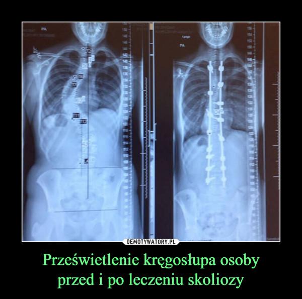 Prześwietlenie kręgosłupa osobyprzed i po leczeniu skoliozy –