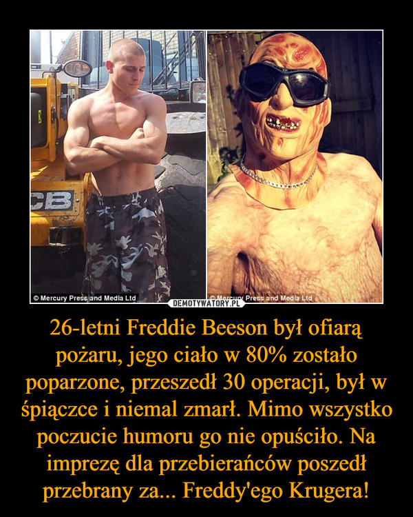 26-letni Freddie Beeson był ofiarą pożaru, jego ciało w 80% zostało poparzone, przeszedł 30 operacji, był w śpiączce i niemal zmarł. Mimo wszystko poczucie humoru go nie opuściło. Na imprezę dla przebierańców poszedł przebrany za... Freddy'ego Krugera! –