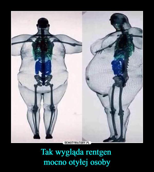 Tak wygląda rentgen mocno otyłej osoby –