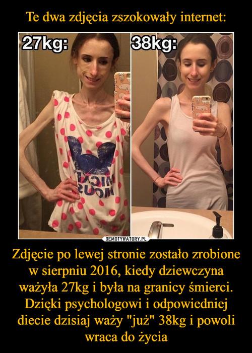 """Te dwa zdjęcia zszokowały internet: Zdjęcie po lewej stronie zostało zrobione w sierpniu 2016, kiedy dziewczyna ważyła 27kg i była na granicy śmierci. Dzięki psychologowi i odpowiedniej diecie dzisiaj waży """"już"""" 38kg i powoli wraca do życia"""