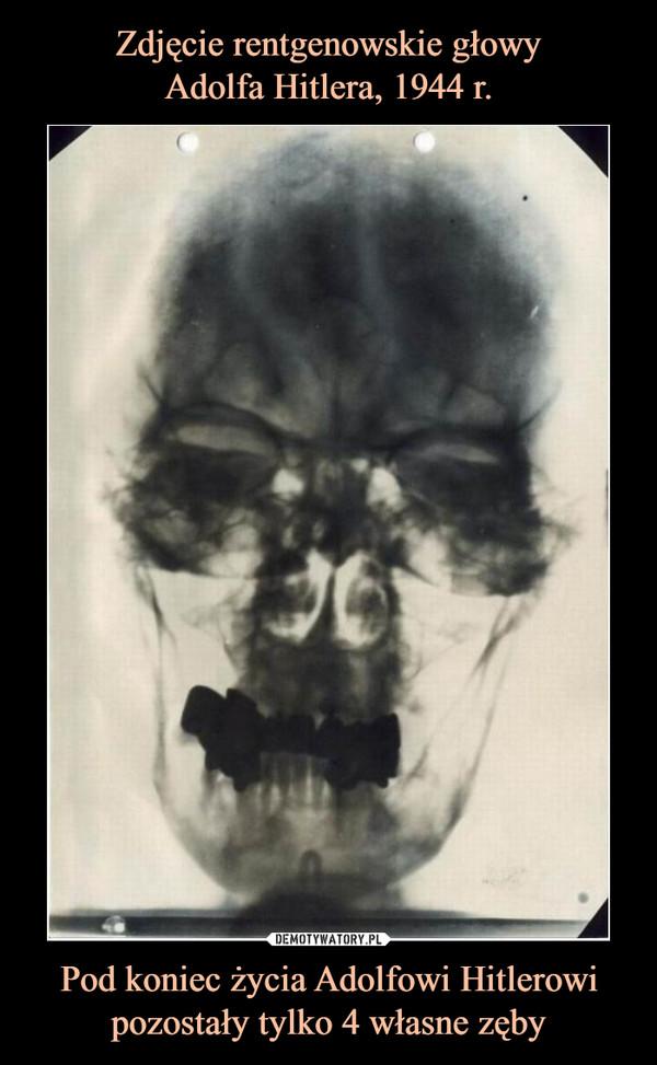 Pod koniec życia Adolfowi Hitlerowi pozostały tylko 4 własne zęby –