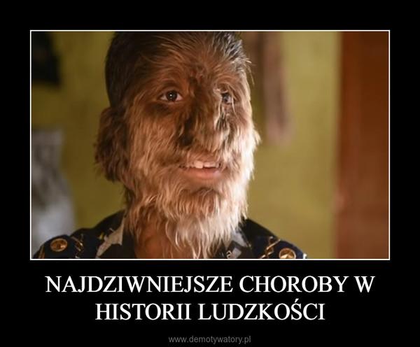 NAJDZIWNIEJSZE CHOROBY W HISTORII LUDZKOŚCI –