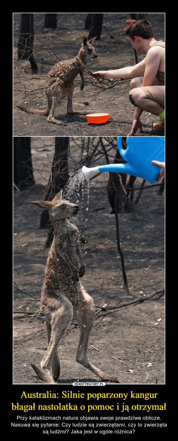 Australia: Silnie poparzony kangur błagał nastolatka o pomoc i ją otrzymał – Przy kataklizmach natura objawia swoje prawdziwe oblicze.Nasuwa się pytanie: Czy ludzie są zwierzętami, czy to zwierzęta są ludźmi? Jaka jest w ogóle różnica?