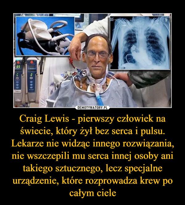 Craig Lewis - pierwszy człowiek na świecie, który żył bez serca i pulsu. Lekarze nie widząc innego rozwiązania, nie wszczepili mu serca innej osoby ani takiego sztucznego, lecz specjalne urządzenie, które rozprowadza krew po całym ciele –