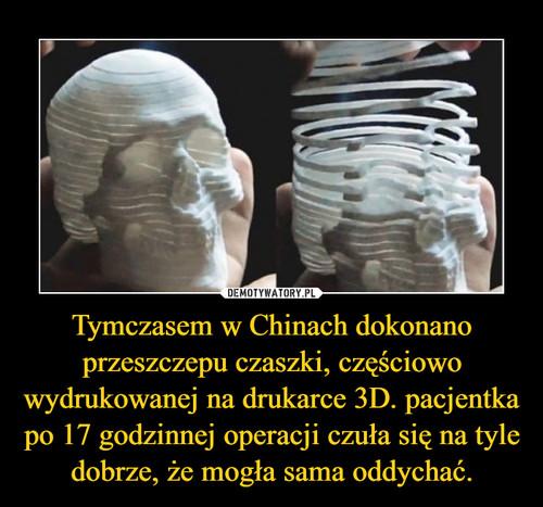 Tymczasem w Chinach dokonano przeszczepu czaszki, częściowo wydrukowanej na drukarce 3D. pacjentka po 17 godzinnej operacji czuła się na tyle dobrze, że mogła sama oddychać.