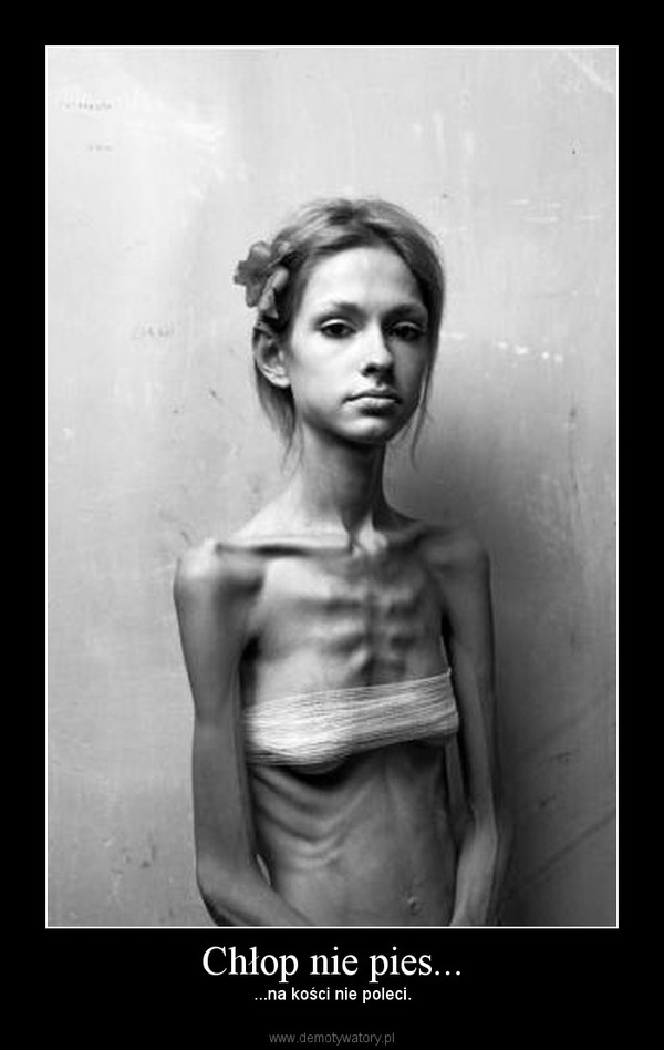 anorexia and the media What is anorexia anorexia nervosa is an eating disorder in which a person is obsessed our society sends a constant stream of media reinforcing thinness as an.